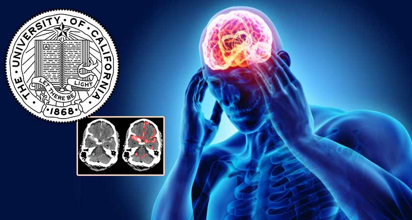 Researchers developed an algorithm that can identify acute intracranial hemorrhage