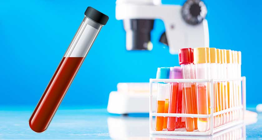 Kolkata Based Laboratory Introduces Robotics to Test Blood Samples with Speed and Accuracy