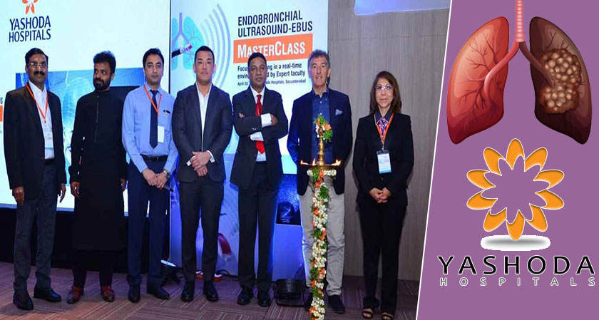 An international conference on advanced lung cancer treatments held at Yashoda Hospital, Hyderabad